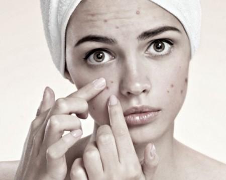 sin-acne-1.jpg